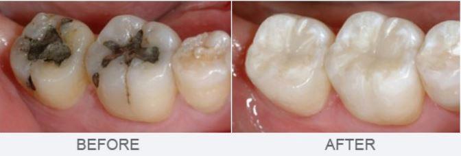 White Fillings – Peach Dental